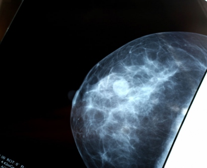 Stock image of a breast scan