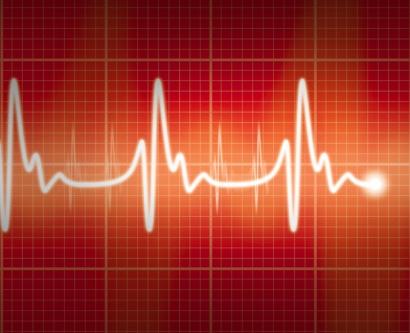 illustration of a heart EKG