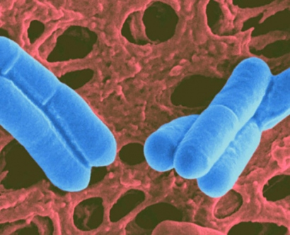 lactobacillus is shown in a microscopic image