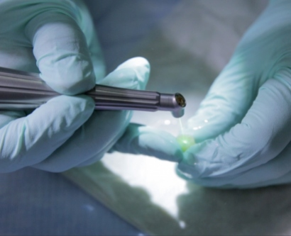 a researcher uses a laser on a tooth
