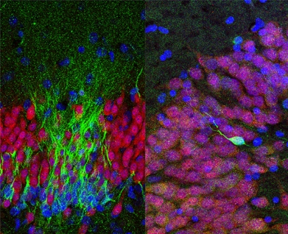 young neurons are shown in green in the human brain at birth; fewer appear at age 13; and none are present at age 35