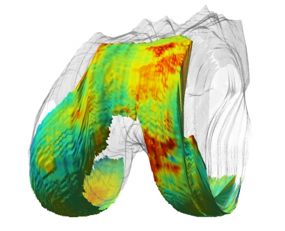 A qMRI image of a knee joint shows healthy cartilage as blue as unhealthy as red