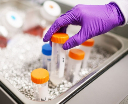 stock images shows a gloved hand removing lab samples from ice