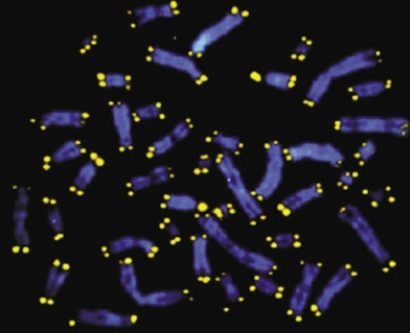 Telomeres are shown in yellow at the ends of chromosomes