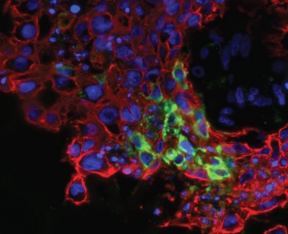 microscopic view of Zika virus infecting cells