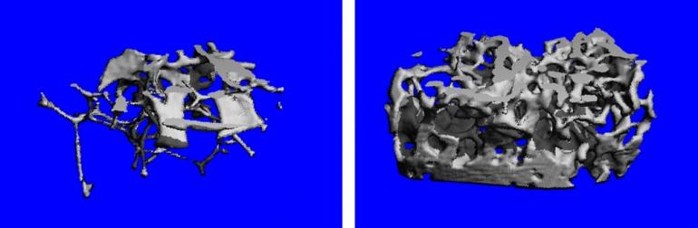 Computer image if a dense femur bone.