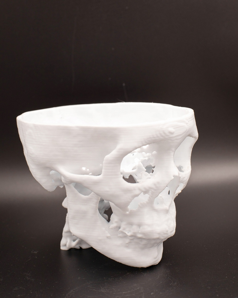 picture regarding 3d Printable D&d Miniatures identified as 3D-Revealed Bones are Serving to Physicians Strategy for Surgical procedures