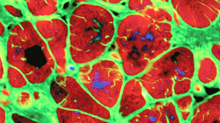 Science image of adult heart tissue, colored in bright red and green.