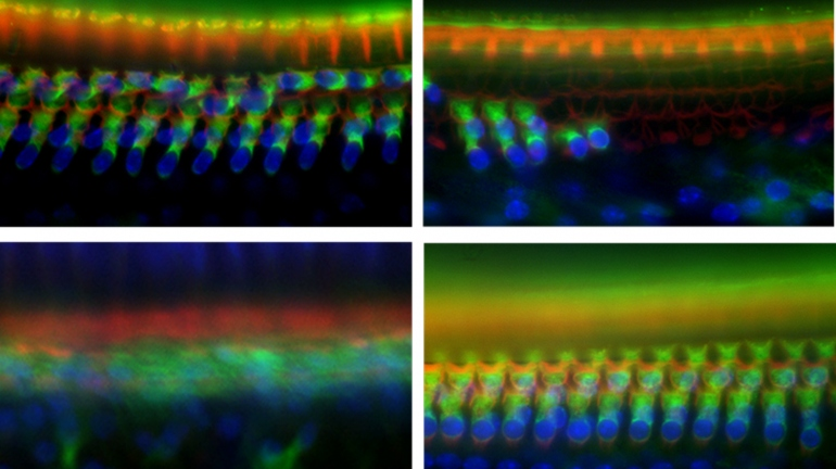 Science images of mouse cochlea in Tmtc4-knockout mice showing hair-cell death.