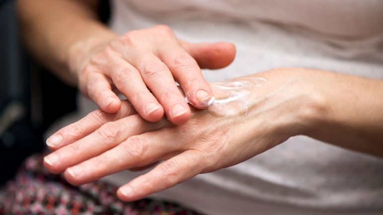 Skin Repair Reduces 'Inflamm-Aging' Factors Linked to Chronic
