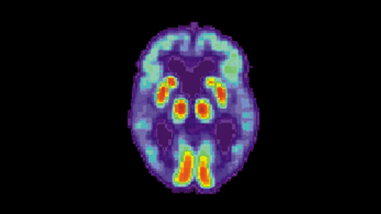 AI can detect Alzheimer's in brain scans 6 years before diagnosis