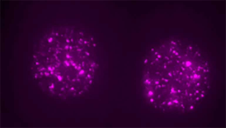Two-cell mouse embryo stained for LINE1 RNA (magenta), which is expressed in the two cell nuclei.Credit Ramalho-Santos lab / UCSF