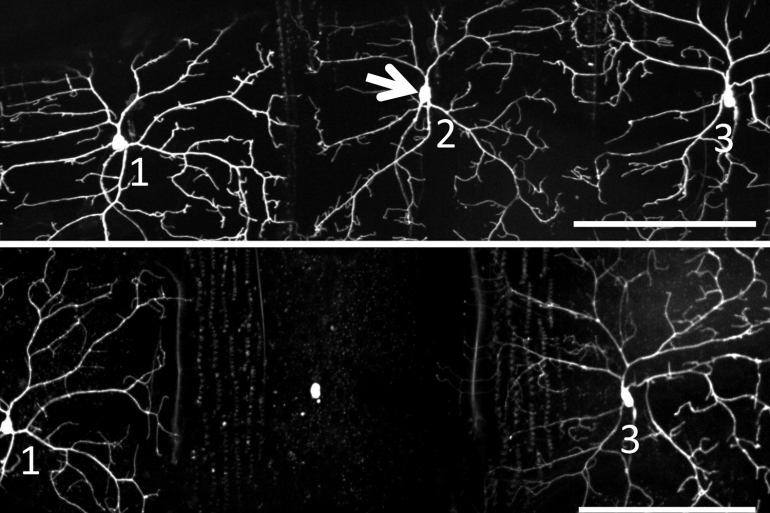 A two-pane image shows a neuron before it is hit with a lightwave and a second image that shows the neuron connections lost 24 hours later