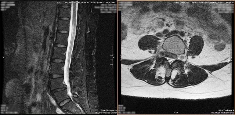 an MRI of a patient ahead of their awake spine surgery
