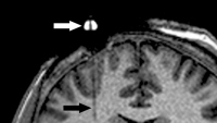 Brain MRI with a faint tube.