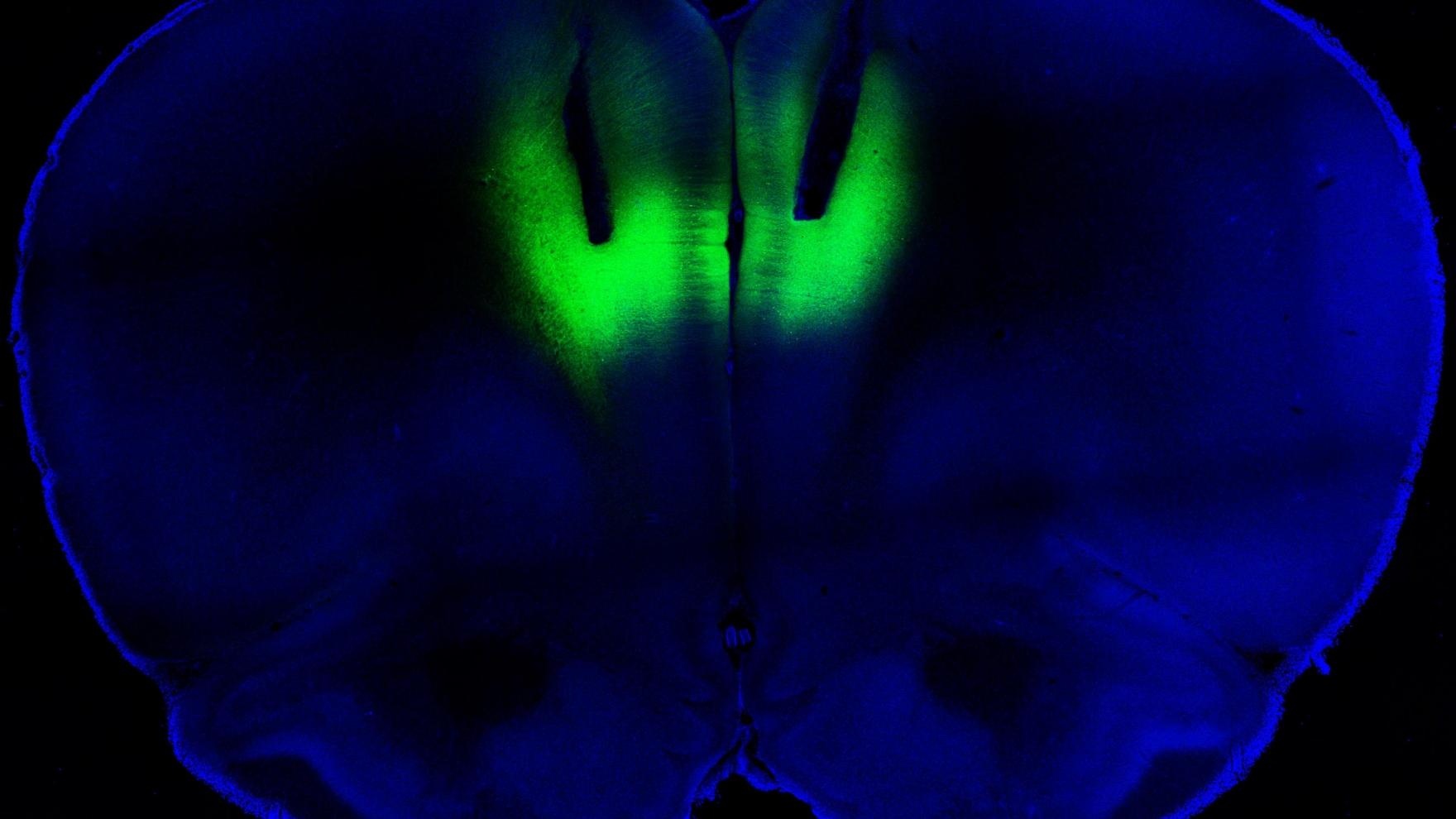 Laser Light Zaps Away Cocaine Addiction
