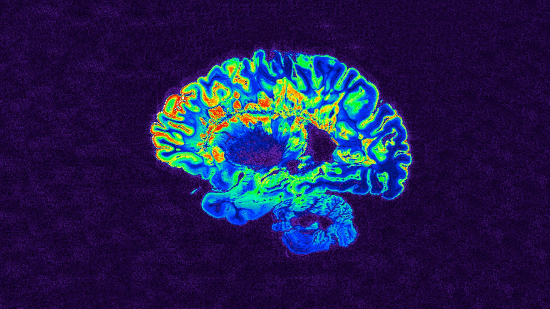 an MRI scan of the brain of a person with multiple sclerosis