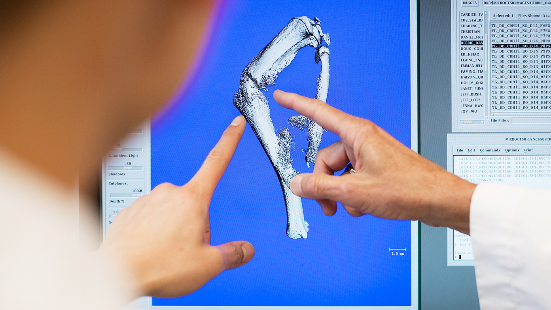 doctors point to an image of a fractured tibia