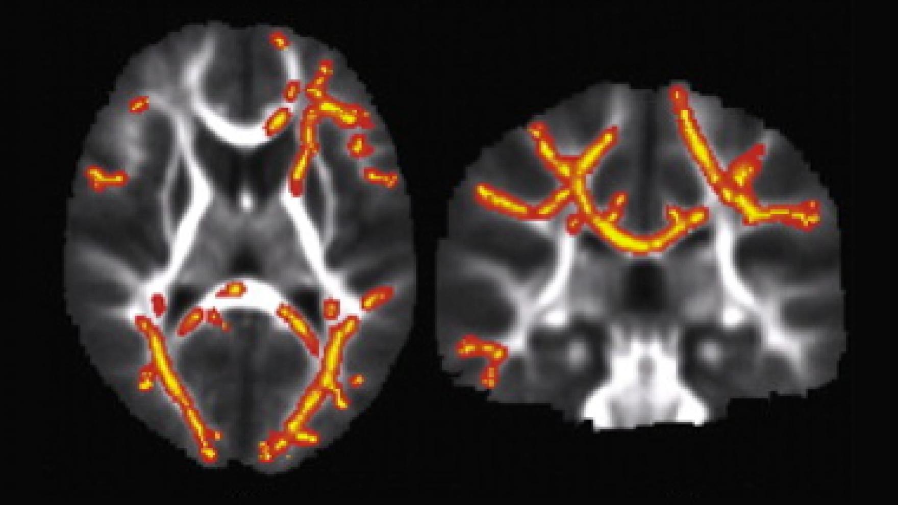 Breakthrough Study Reveals Biological >> Breakthrough Study Reveals Biological Basis for Sensory Processing Disorders in Kids | UC San ...
