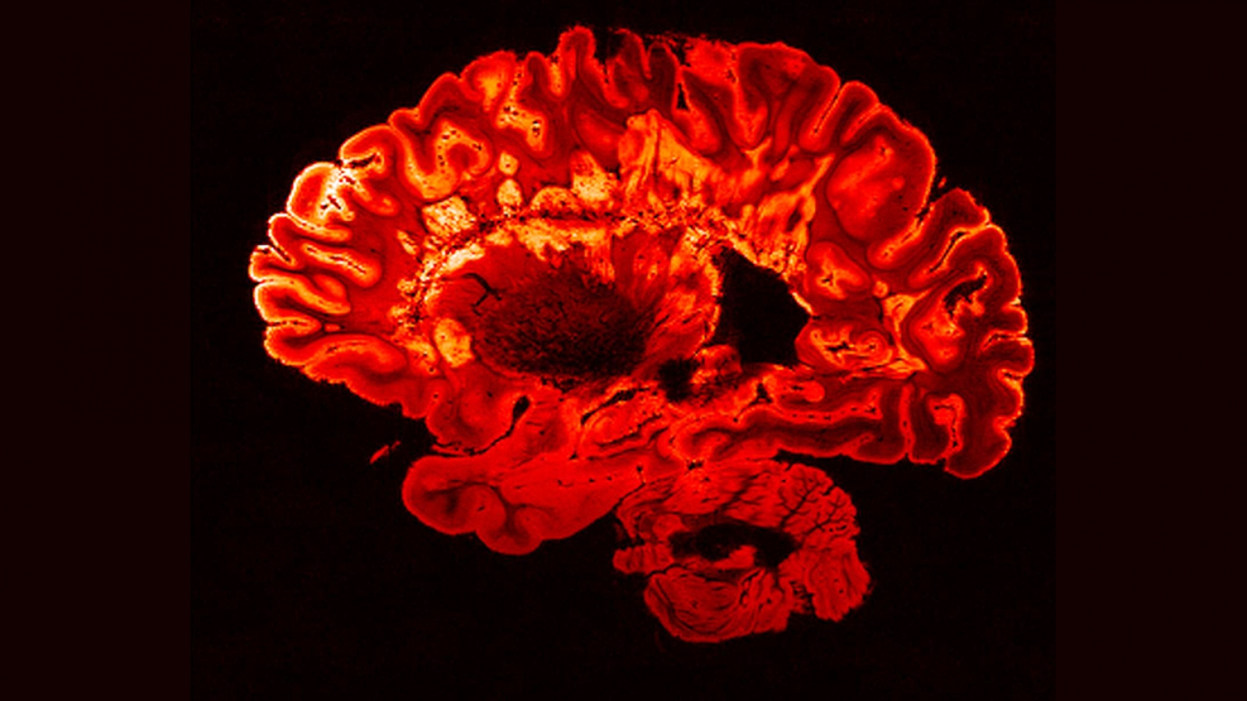 MRI brain scan of a person with MS.