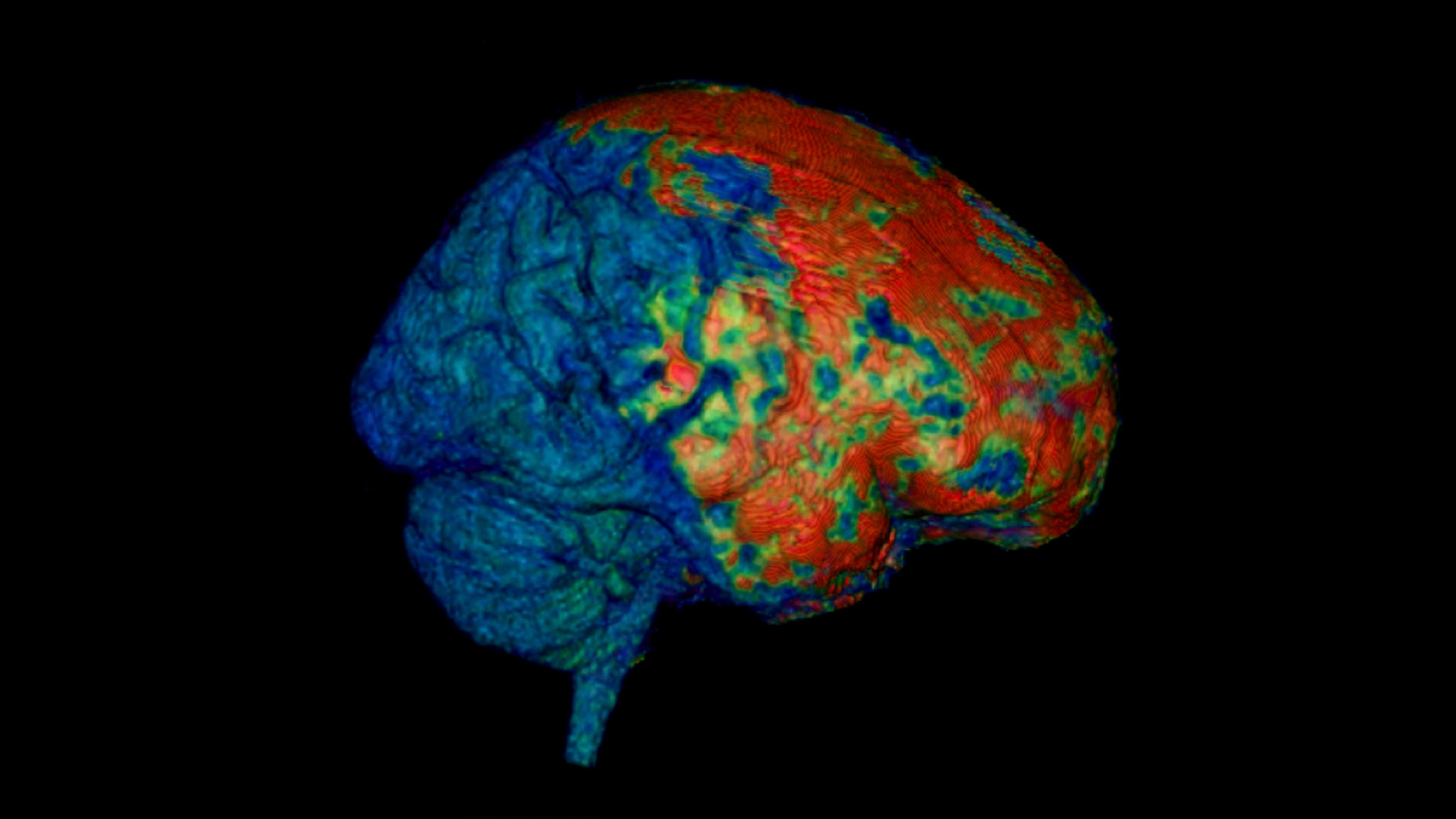 an MRI scan of a brain with a concussion
