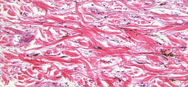 A microscopic image of skin cells.