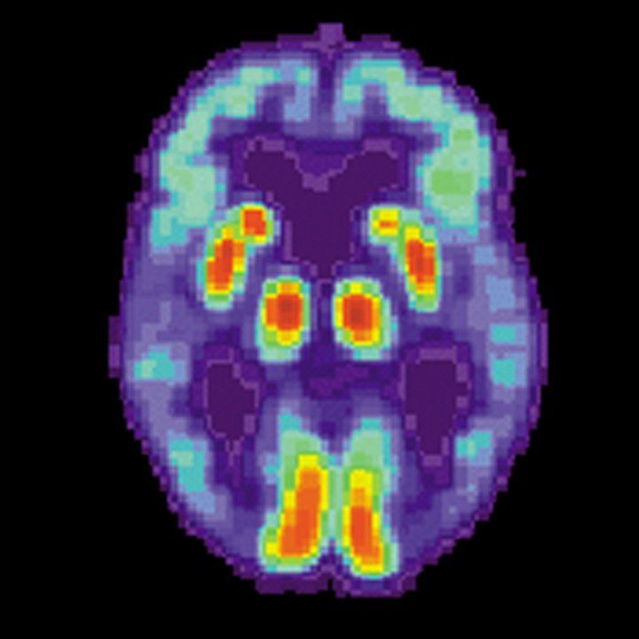 PET scan of a brain with Alzheimer's