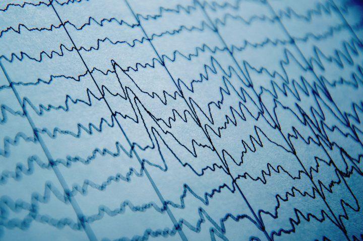 EEG patterns on paper