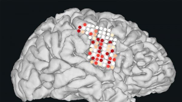 an illustration shows the electrods on a brain that are used to synthesize speech
