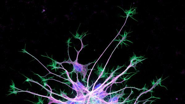Microscopic image of neuron cytoskeleton
