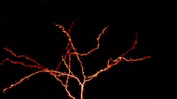 Glowing mouse neuron