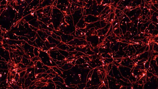 microscopic image of neurons