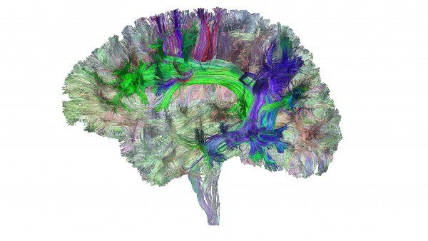 image of brain's white matter