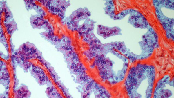 prostate cancer microscopic image