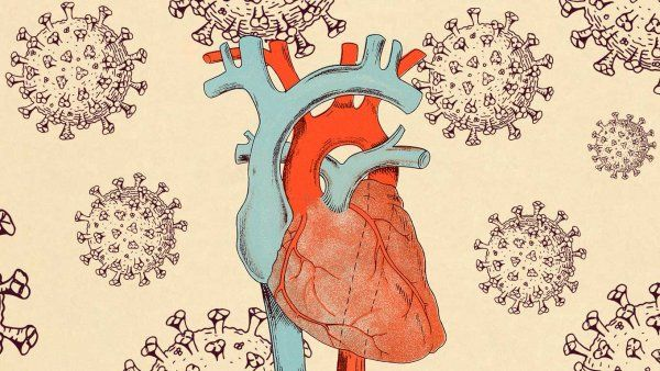 Vintage style illustration of a human heart with SARS-CoV-2 cells floating around it.