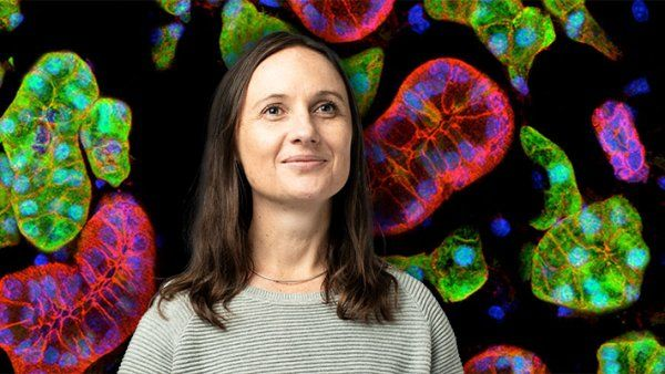 Portrait of Sarah Knox in front of a background of colorful microscopic imagery of acini and ducts in a mouse submandibular salivary gland.