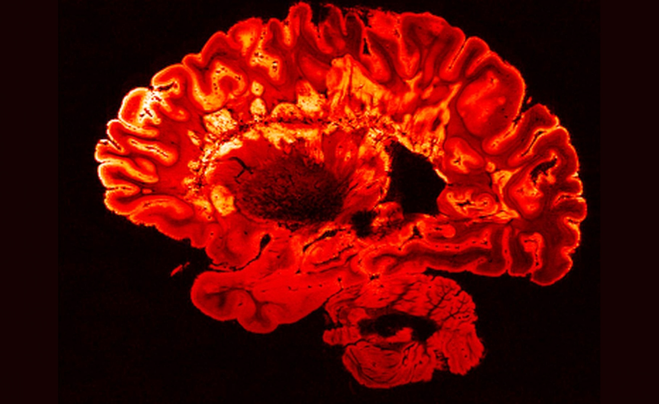 An MRI scan of a person with multiple sclerosis shows bright spots, which are MS plaques