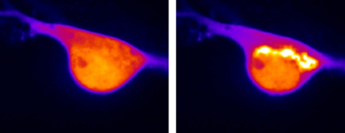 Two nerve cells, one before morphine and the other after, which results in bright yellow light.