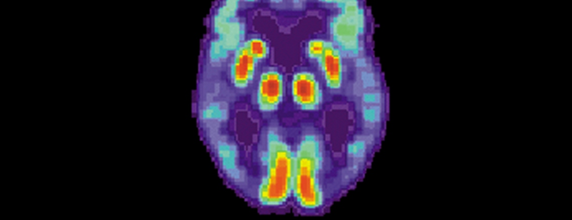 a PET scan of the brain of a person with Alzheimer's disease