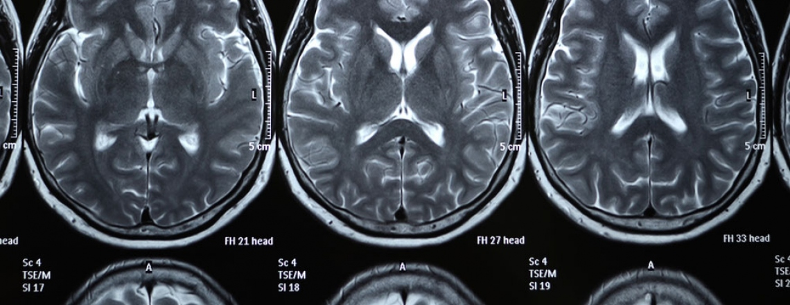 x-ray images of a human brain