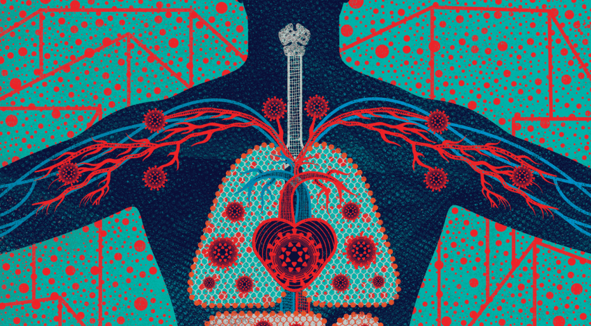 Illustration of the inside of a body, with coronavirus cells throughout.