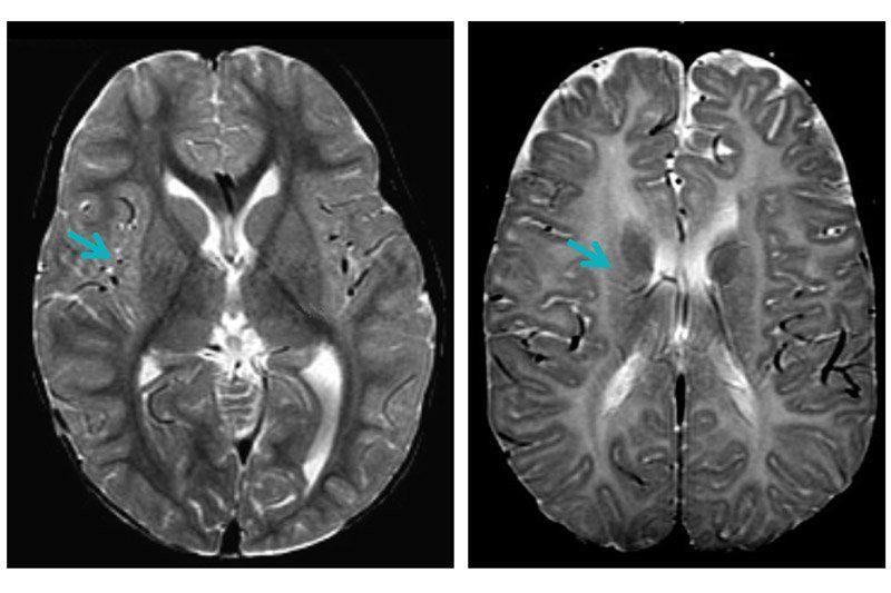 PMD brain scan