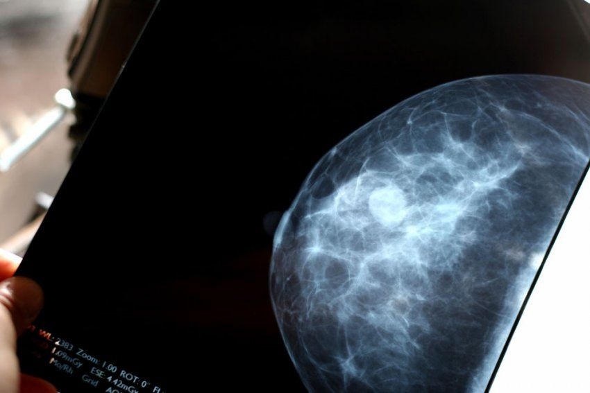 Breast Cancer - cover